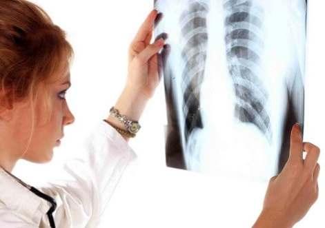 Туберкульоз у дітей: причини, симптоми, методи лікування