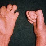 Проказа (Лепра): клінічні прояви на шкірі