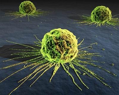 Незвичайний підхід вбиває ракові пухлини всього за 40 днів