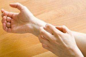 Шкірні прояви кандидозу у пацієнтів з цукровим діабетом