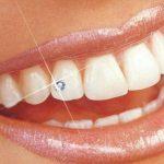 Декоративні зубні прикраси