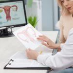Контрацепція жінок в пременопаузальному періоді