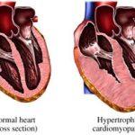 Спортивне серце – межа між нормою та патологією