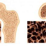 Як лікувати остеопороз суглобів і кісток у жінок в домашніх умовах