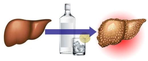 Як алкоголь впливає на печінку