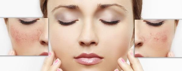Постійне почервоніння шкіри обличчя може бути ознакою шкірного захворювання