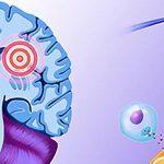 Сучасні перспективи лікування розсіяного склерозу