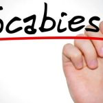 Scabies is dangerous ailment whether or not…