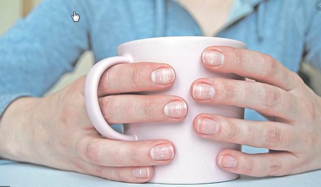 Зміни нігтів свідчать про проблеми зі здоров'ям