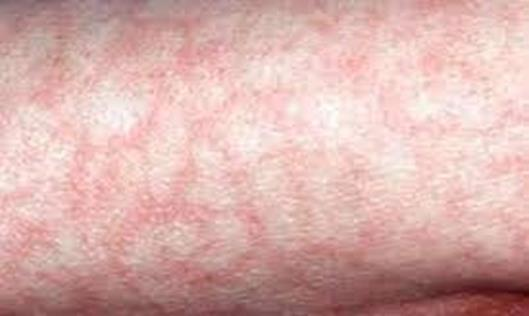 Зміни шкіри при COVID – 19